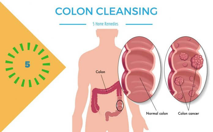 5 TOP HOME REMEDIES FOR COLON CLEANSING