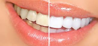 Try These Home Remedies For Sparkling Teeth And Fresh Breath