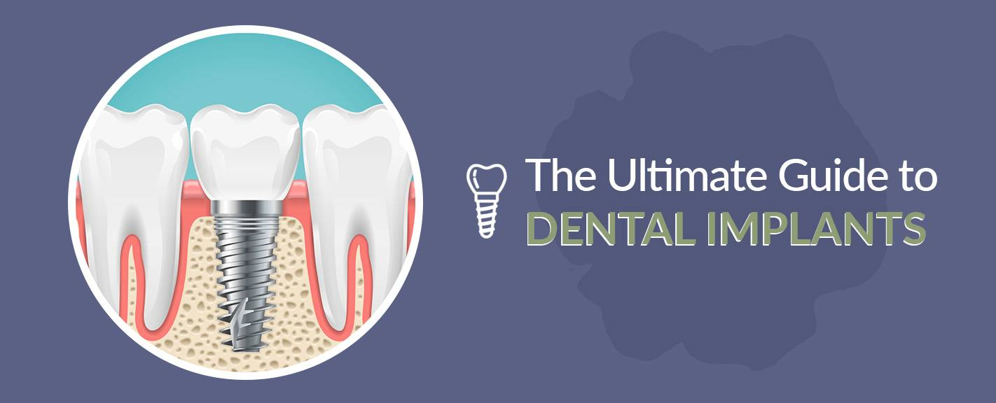 Dental Implants: Solving the Consequences of Poor Oral Hygiene