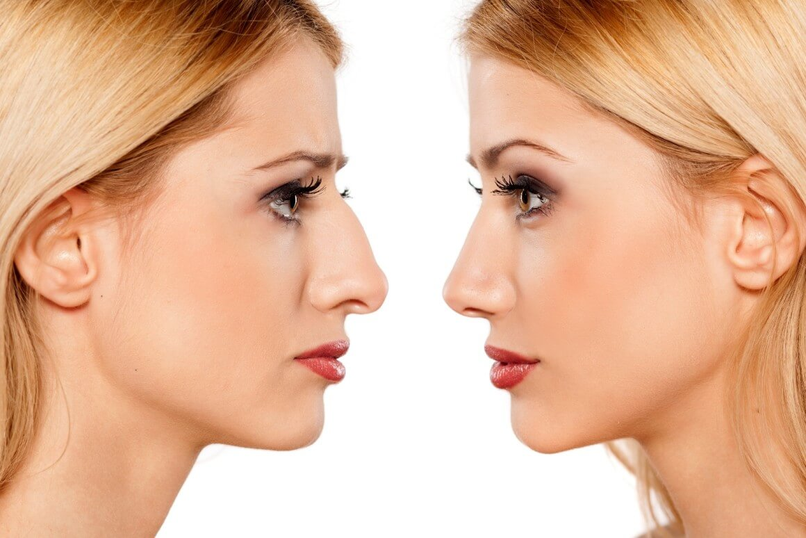 Is Non-Surgical Rhinoplasty Worth it?